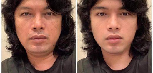 เสก โลโซ ที่เจ้าตัวโพสต์รูปผ่าน social media อย่าง facebook ภาพแรกเป็นภาพของเจ้าตัวด้วยใบหน้าปัจจุบัน